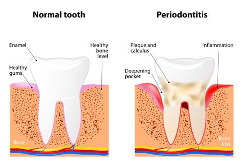Gum Disease Longview and Tyler