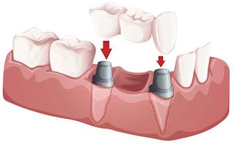 dental bridge Corsicana, Mansfield, Seagoville, Waxahachie