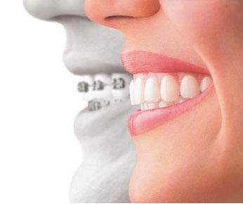 Invisalign Orthodontics Longview, Tyler, South Tyler TX