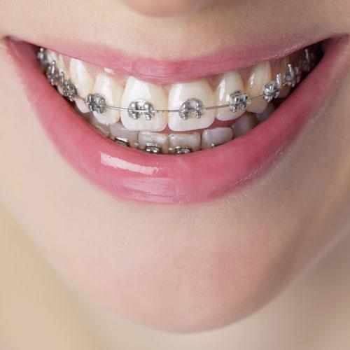 High Tech Affordable Dentistry Fresh Dental Orthodontics Tyler Longview Tx